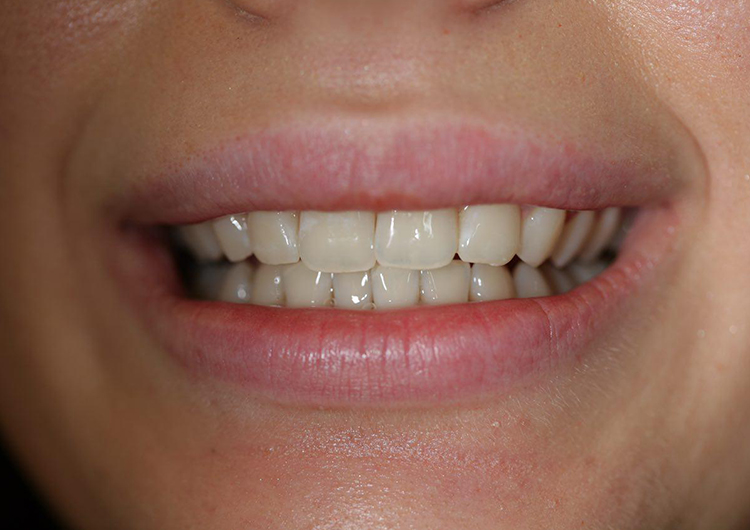 отбеливание зубов нужна ли лицензия